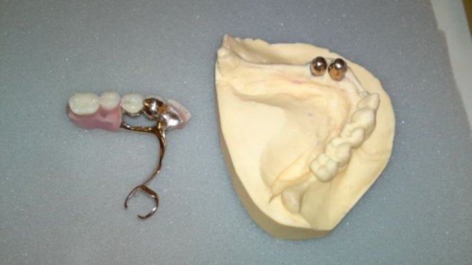 Unterkiefer teilprothese Zahnprothese: Teilprothese,